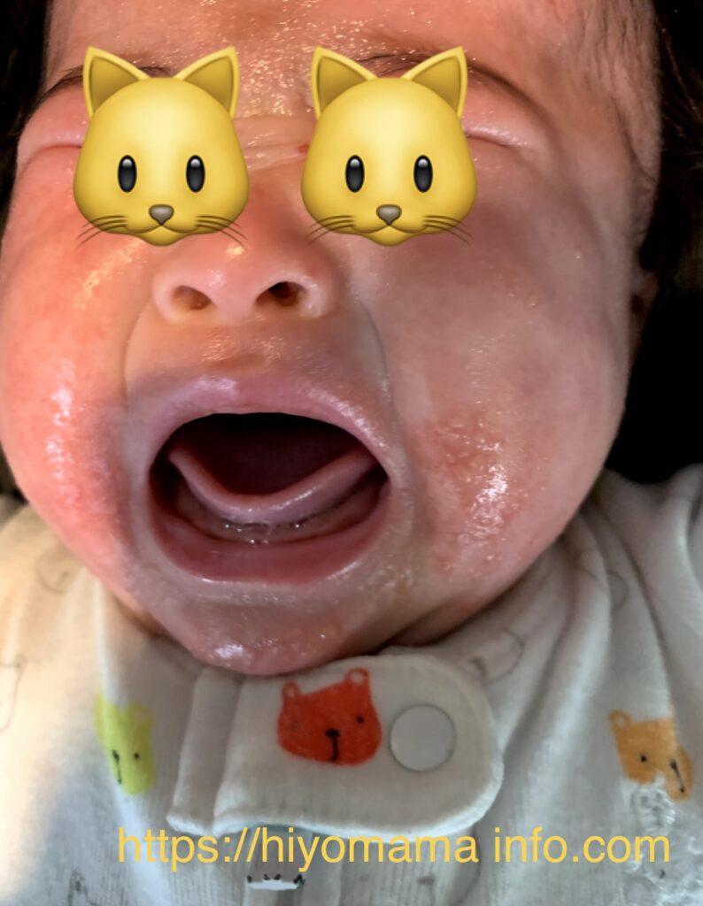 乳児湿疹症状