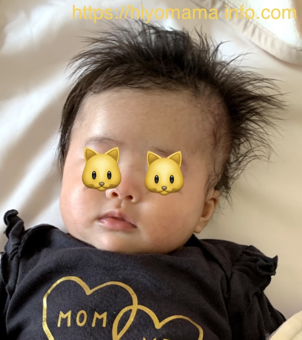 乳児湿疹経過